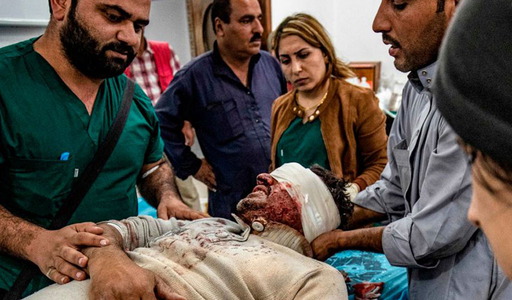 Trump lifted sanctions on Turkey despite its reported use of chemical weapons. Shown here a man injured while entering the Syria border town of Ras al-Ayn during a ceasefire (Photo: DELIL SOULEIMAN/AFP via Getty Images)